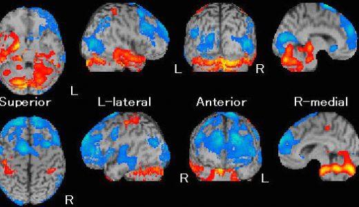 認知症検査に新たな風が吹く!脳疾患診断薬「dat Scan」ついに発売開始