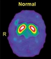 新しい認知症の検査:Dat scan(ダットスキャン)検査について