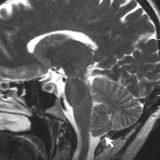脊髄空洞症とキアリ奇形|大後頭孔減圧術を経験しました。