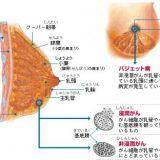 3Dマンモグラフィ(トモシンセシス)って何?乳癌検診を受ける前に知っておくべきこと。